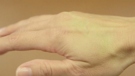 Simple hand test may indicate whether or not you're dehydrated