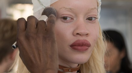 This albino model is shaking up the fashion industry