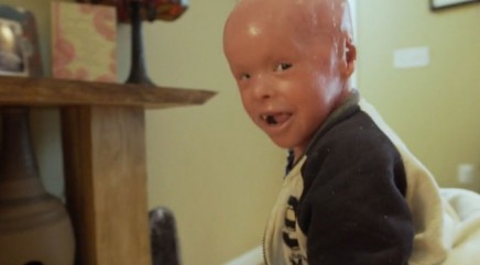 Parents open up about rare condition that leaves son with scales across his body