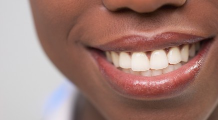 Unexpected food can actually make your teeth whiter